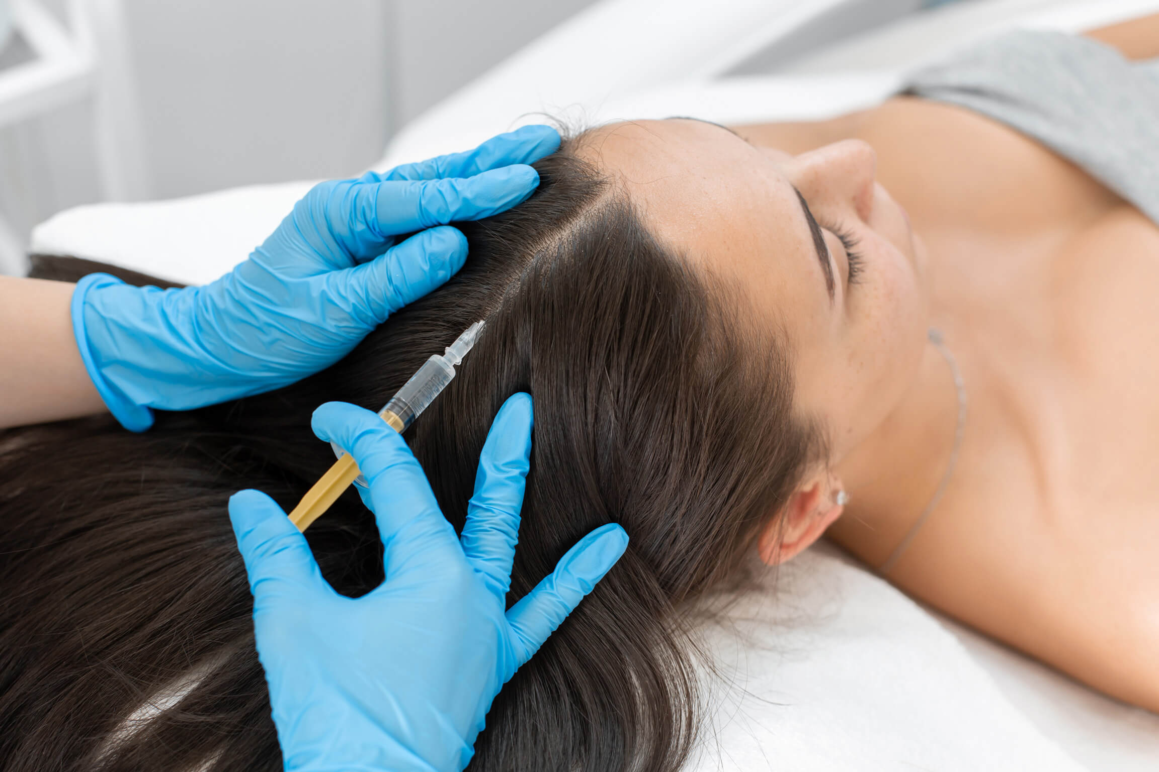 Platelet Rich Plasma (PRP) for Hair Regeneration